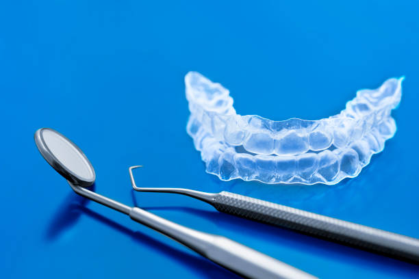 Invisible brackets tooth for home tooth bleaching- Invisalign - stock photo