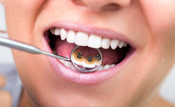 invisible lingual braces stock photo