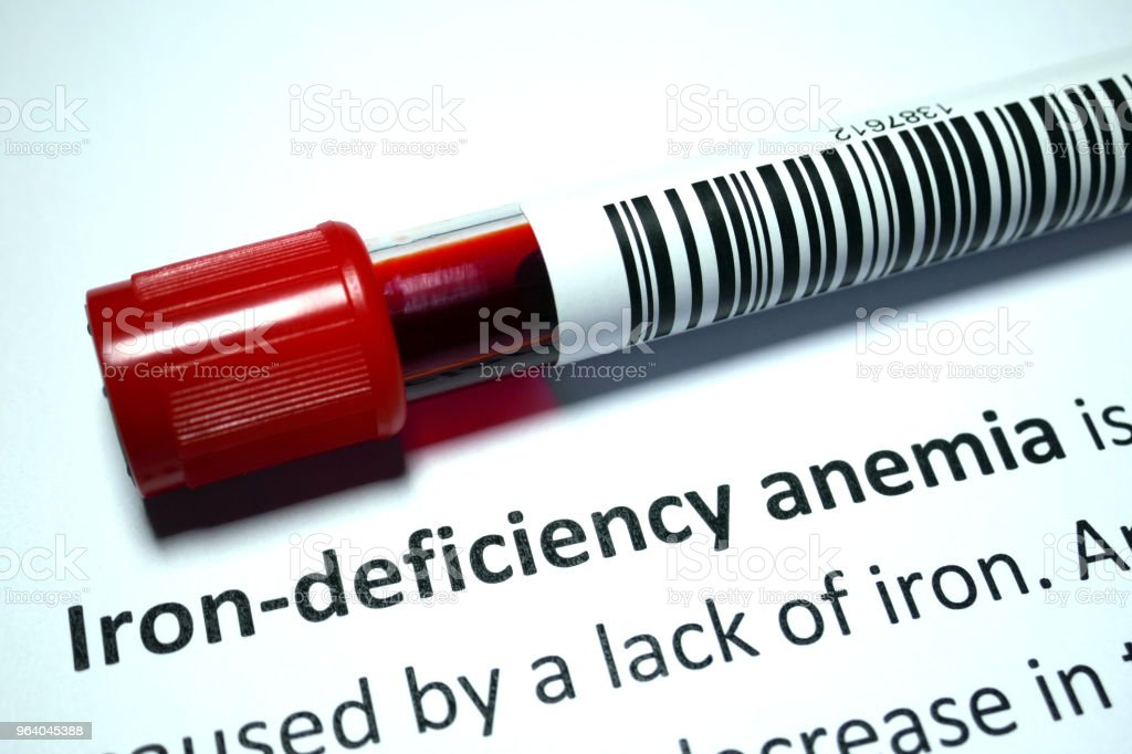 Iron-deficiency - Royalty-free Analyzing Stock Photo