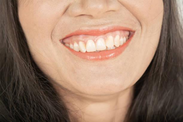 Irregularities teeth .Abnormal teeth and Yellow stock photo