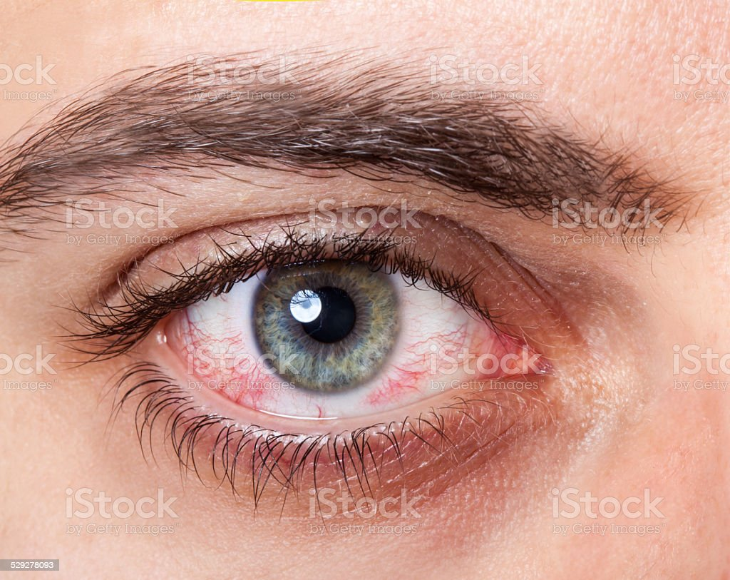 Irritated red bloodshot eye stock photo