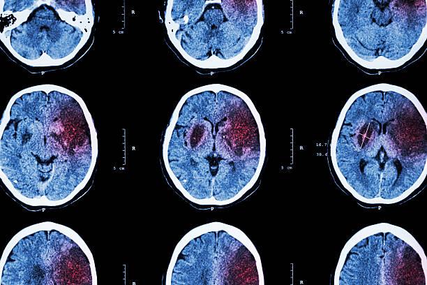 Ischemic stroke stock photo