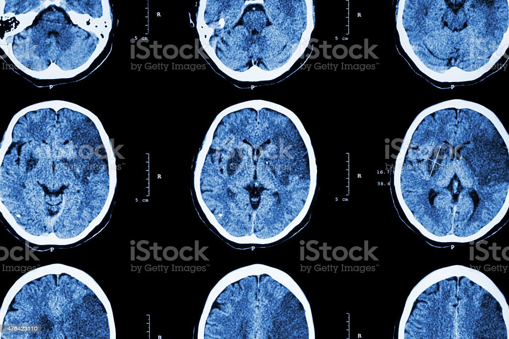 Ischemic stroke stock photo
