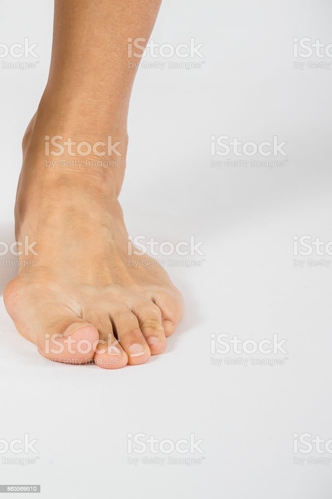 isolated background of foot deformity called bunion deformity or hallux valgus stock photo