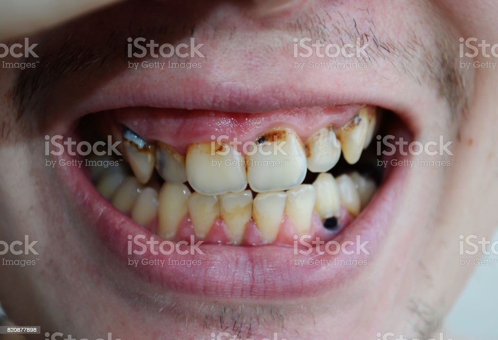 issues for Oral Care, Caries, tartar, gum disease, dental problems, bad teeth, dental problems, dentistry stock photo