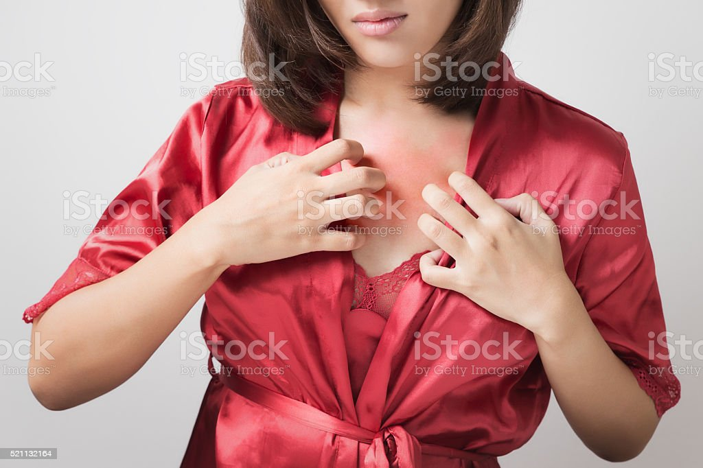 itch stock photo