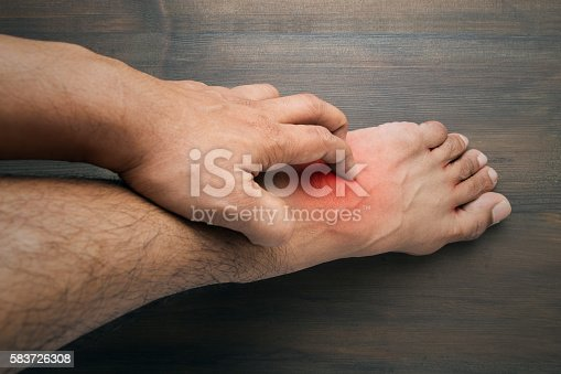 istock itching 583726308