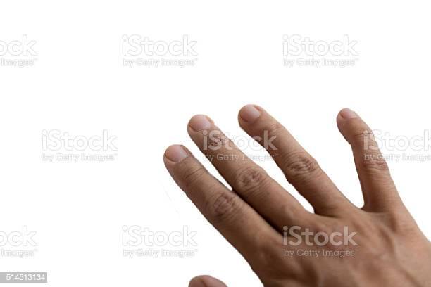 Finger ausschlag Juckende Hände