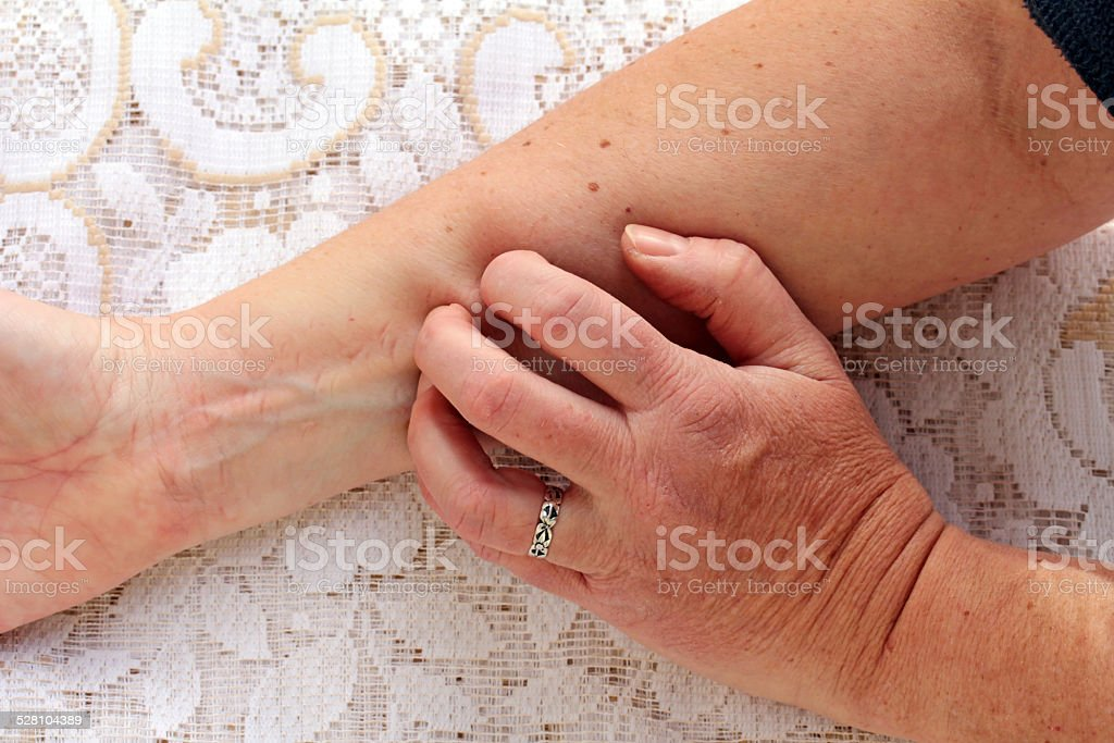 itchy skin stock photo