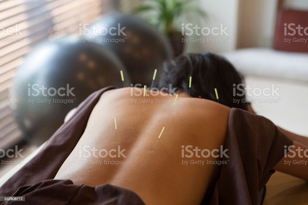 japanese female get acupuncture treatment in kyoto japan japanese female get acupuncture treatment in kyoto japan Acupuncture Stock Photo