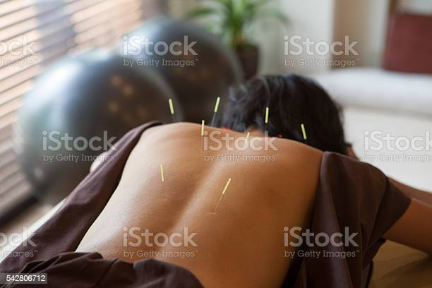 Japanese Female Get Acupuncture Treatment In Kyoto Japan Stock Photo - Download Image Now