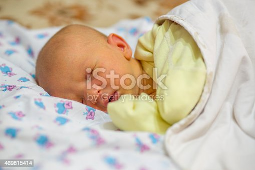istock Jaundice in a newborn baby 469815414