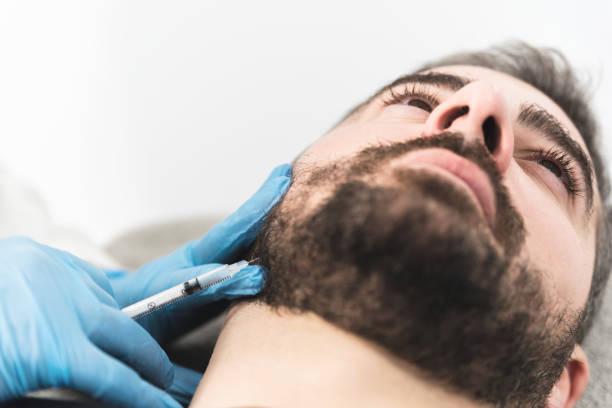 Injeções de enchimentos de mandíbula no homem - foto de acervo