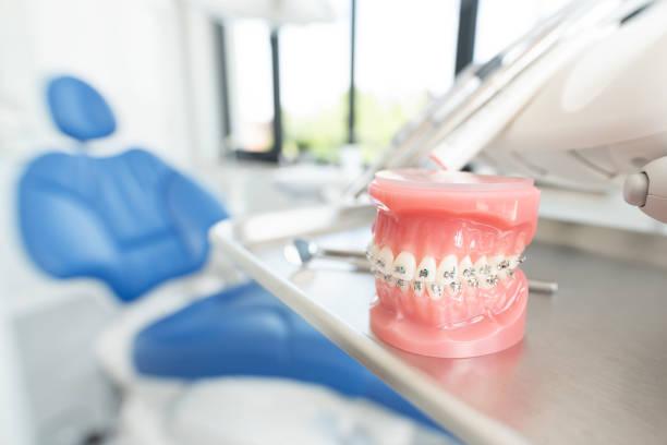 kiefermodell in der zahnarztpraxis - kieferorthopäde stock-fotos und bilder