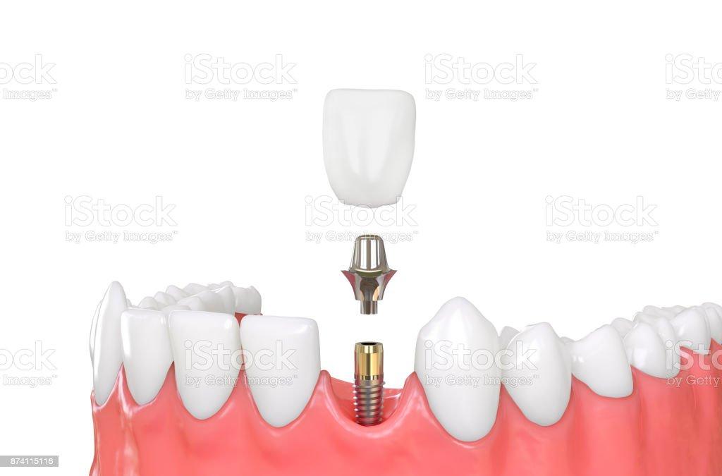 Kiefer-Modell Zahnimplantate – Foto