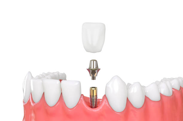 jaw model tooth implant jaw model tooth implant 3d illustration tooth crown stock pictures, royalty-free photos & images