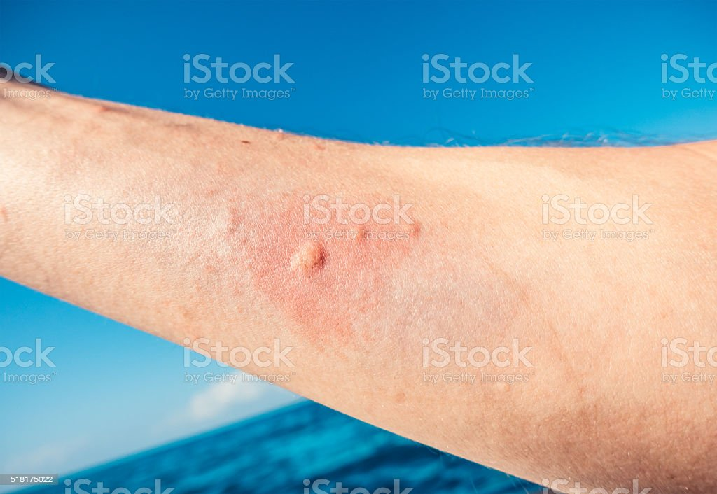 Jellyfish Sting stock photo