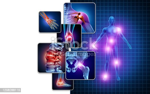 Joint body pain concept as skeleton and muscle anatomy of the body with a group of sore joints as a painful injury or arthritis illness symbol for health care and medical symptoms with 3D illustration elements.