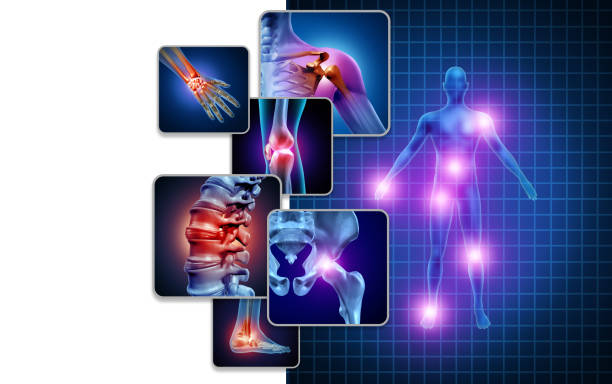 Joint Body Pain Joint body pain concept as skeleton and muscle anatomy of the body with a group of sore joints as a painful injury or arthritis illness symbol for health care and medical symptoms with 3D illustration elements. cartilage stock pictures, royalty-free photos & images