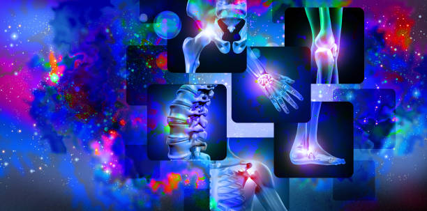 Joint Pain Background stock photo