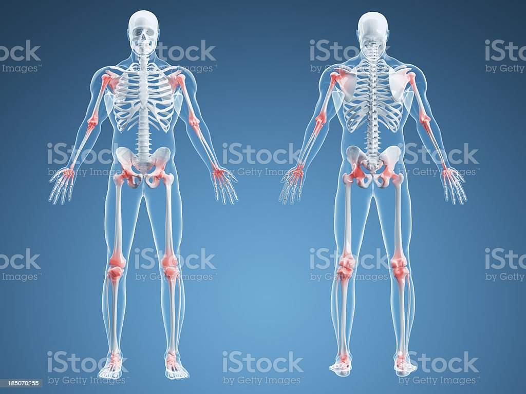 Joint Pain Illustration stock photo