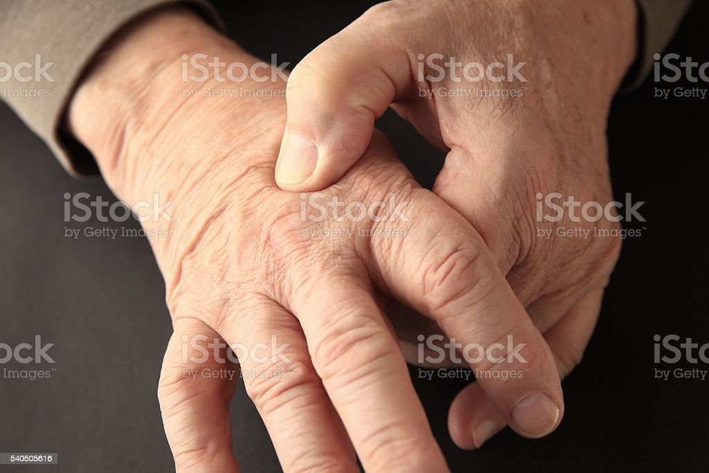 Joint pain on hand of older man stock photo