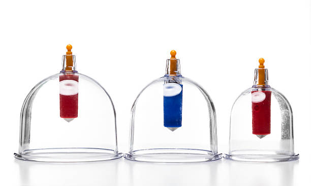 kangzhu cupping set of three - cupping therapy stock photos and pictures
