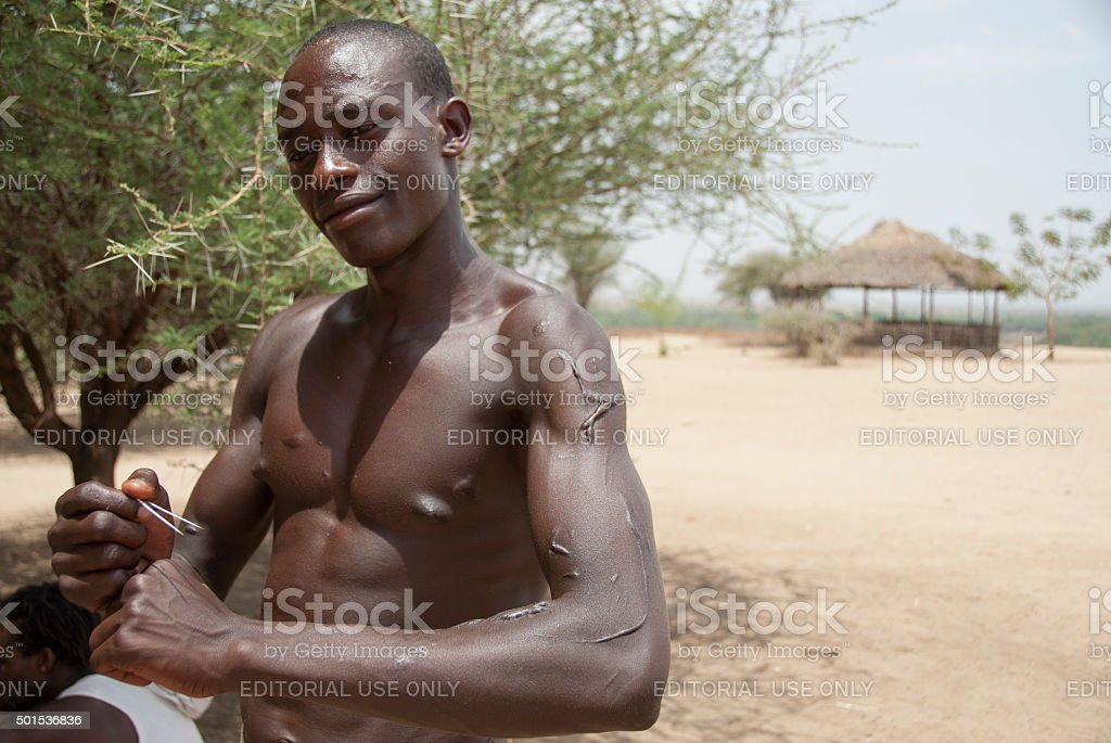 Karo stick fighter shows his scars in Colcho, Ethiopia. stock photo