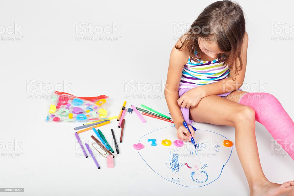 keeping busy with a leg cast stock photo
