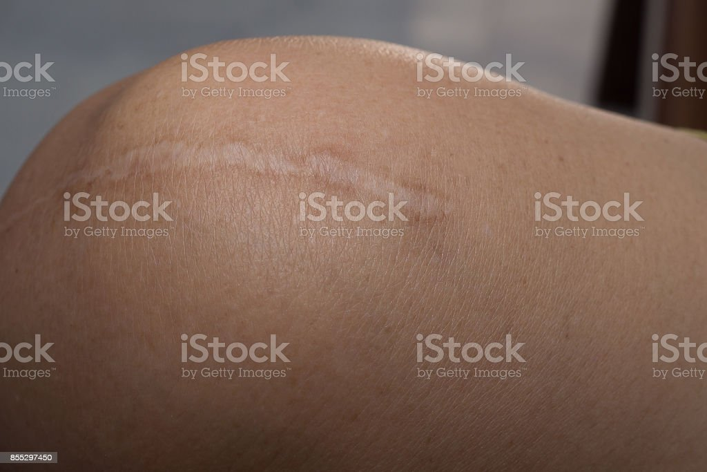 A Keloid on skin Body closeup image royalty-free stock photo