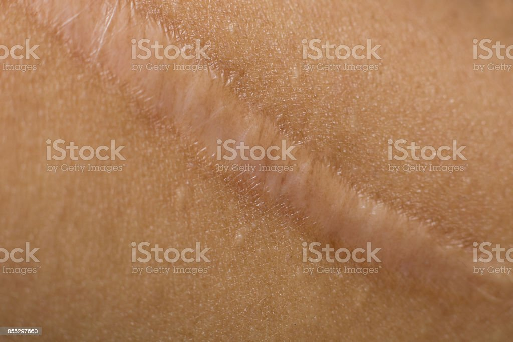 A Keloid on skin Body closeup image stock photo