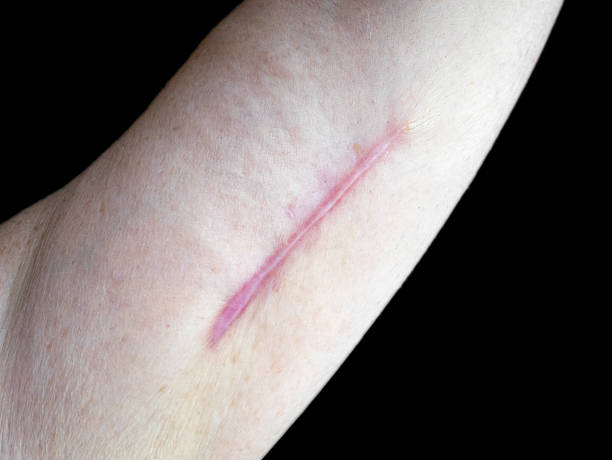 Keloid scar on a senior woman's arm stock photo