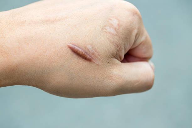 keloid scar (hypertrofiska ärr) på man hand hud efter olycka. keloidal ärr på handled hud orsak av kirurgi i bil oavsiktlig - ärr bildbanksfoton och bilder