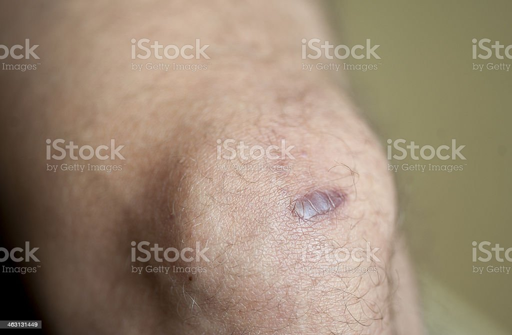 Keloid Scar stock photo