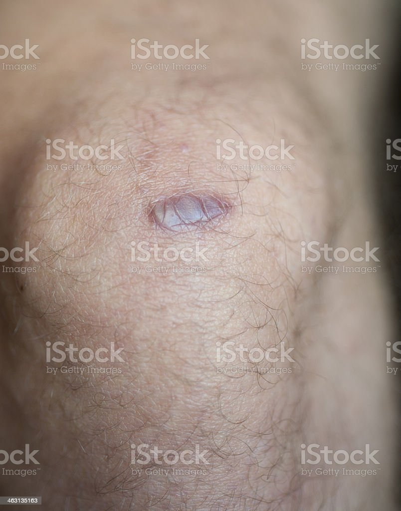 Keloid Scar royalty-free stock photo