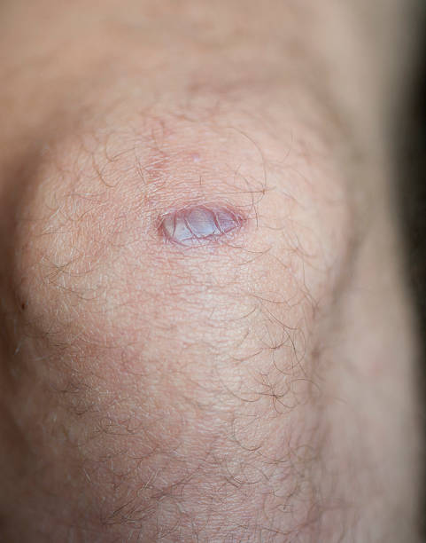 Keloid Scar stock photo