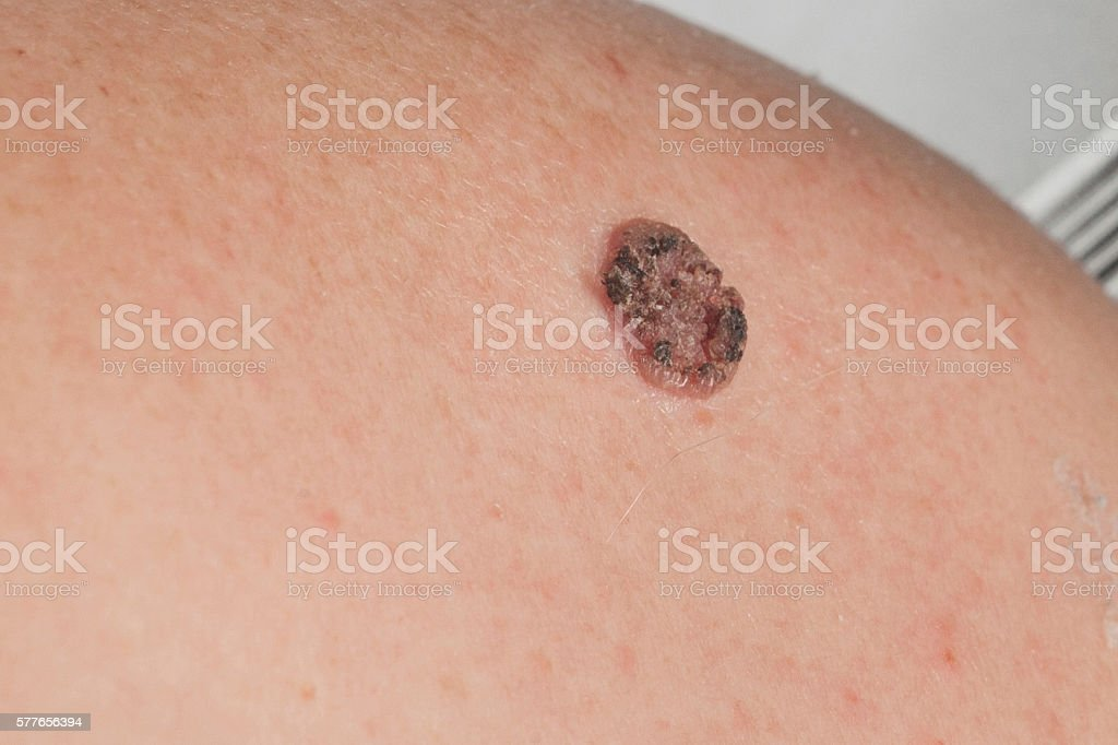keratinizing squamous cell carcinoma of the skin stock photo