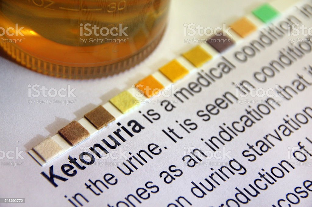 diabetes cetona i urinen