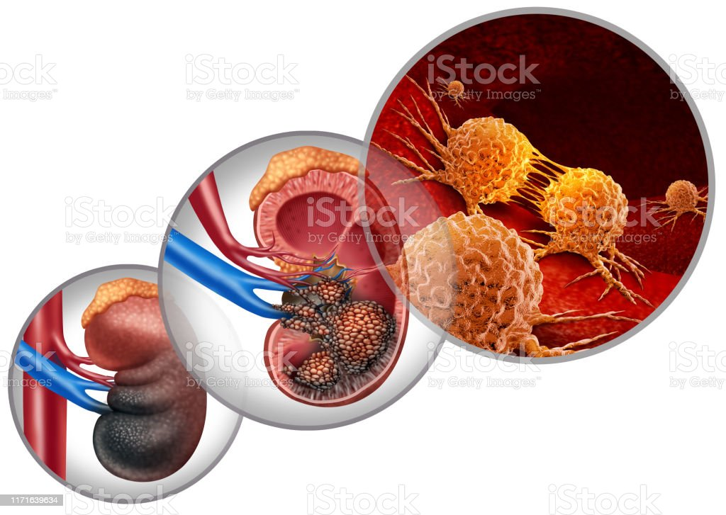 Kidney Cancer Disease Stock Photo Download Image Now Istock