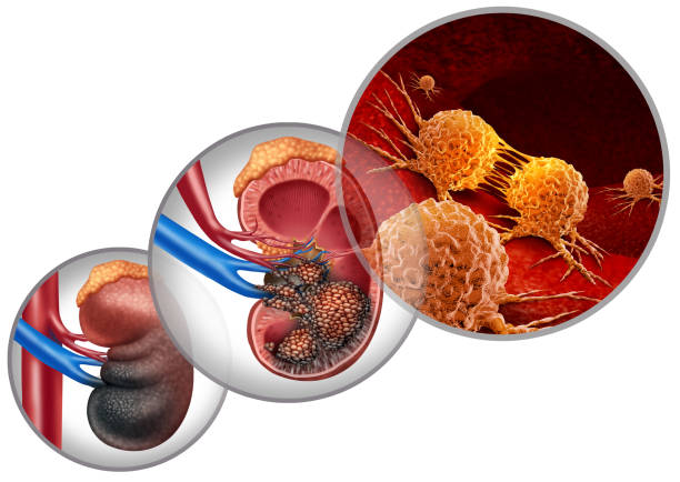 Kidney Cancer Disease Kidney cancer disease medical concept as malignant cells in a human body attacking the urinary system and renal carcinoma anatomy as a symbol for tumor growth treatment and risk with 3D illustration elements. carcinoma stock pictures, royalty-free photos & images