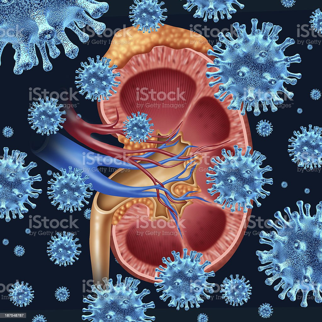 Kidney Infection royalty-free stock photo