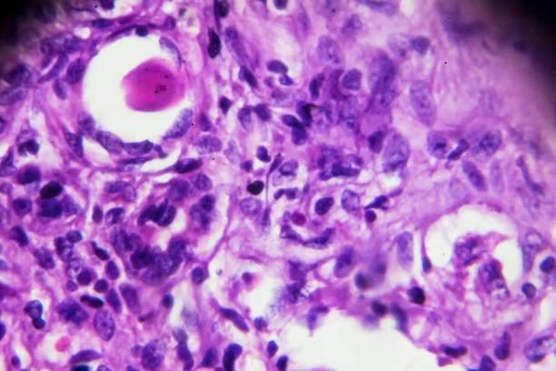 Kidney tuberculosis pathological sample under microscope stock photo
