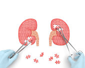 istock Kidneys operation 485756966