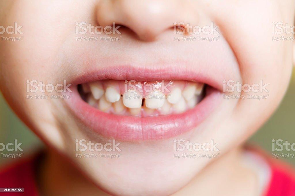 Kid's teeth stock photo