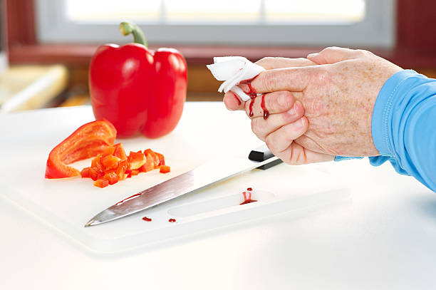 Kitchen Accident with Knife and Blood stock photo