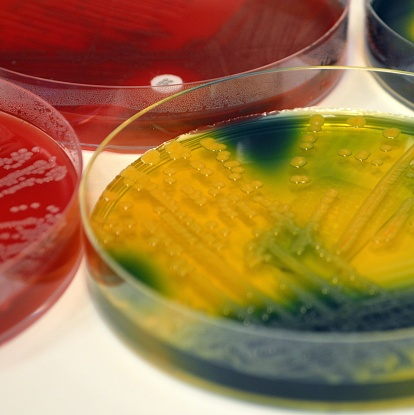 Klebsiella pneumoniae can cause hospital acquired infections and even outbreaks in Intensive Care Units.