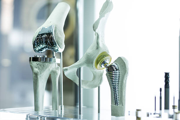 Knee and hip prosthesis for medicine - foto de acervo