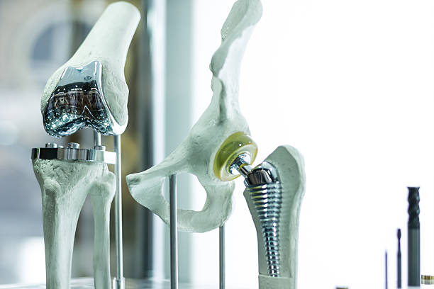 Knee and hip prosthesis Modern knee and hip prosthesis made by cad engineer and manufactured by 3d printing medical equipment stock pictures, royalty-free photos & images