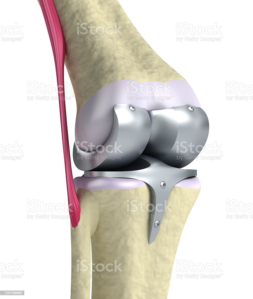 Knee and titanium hinge joint stock photo