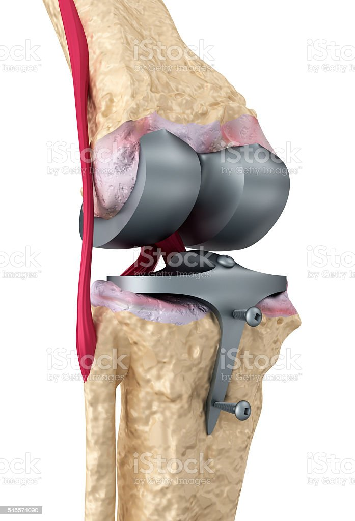 Knee and titanium hinge joint. stock photo